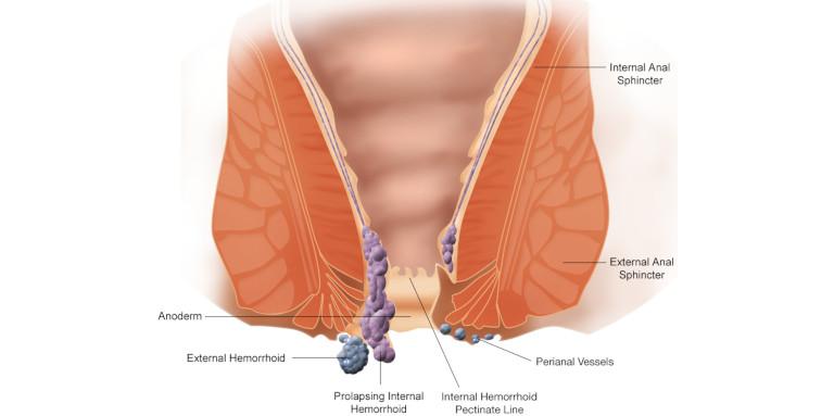 Patologie Emorroidarie